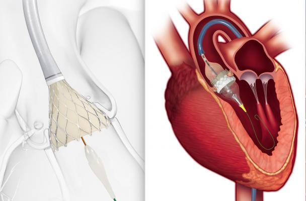 FDA Approves TAVR for Low-risk Patients Creates A Paradigm Shift in Cardiology Monmouth Cardiology Associates