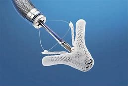 MitraClip Procedure- Non-Surgical Solution for Mitral Valve Regurgitation Monmouth Cardiology Associates