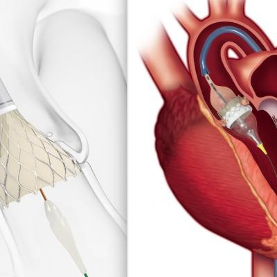 FDA Approves TAVR for Low-risk Patients Creates A Paradigm Shift in Cardiology