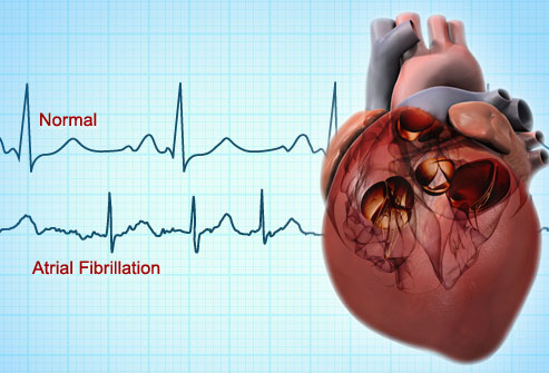 Do you have Atrial Fibrillation?  Monmouth Cardiology Associates